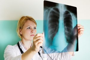 Causes of Mesothelioma in Houston
